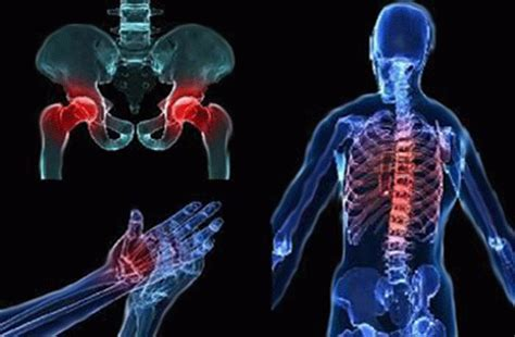 Osteoporosis: Be Proactive Rather Than Reactive