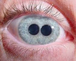 This is an example of Pupula Duplex