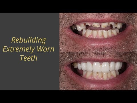 Gold Inlays and Onlays | The Mark Dental Group
