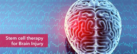 Stem Cell Treatment for Brain Injury, Stem Cell Therapy