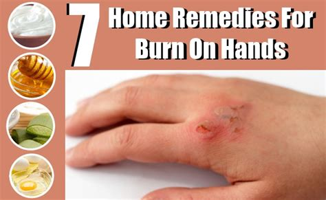 7 Effective Home Remedies For Burns On Hands - Natural